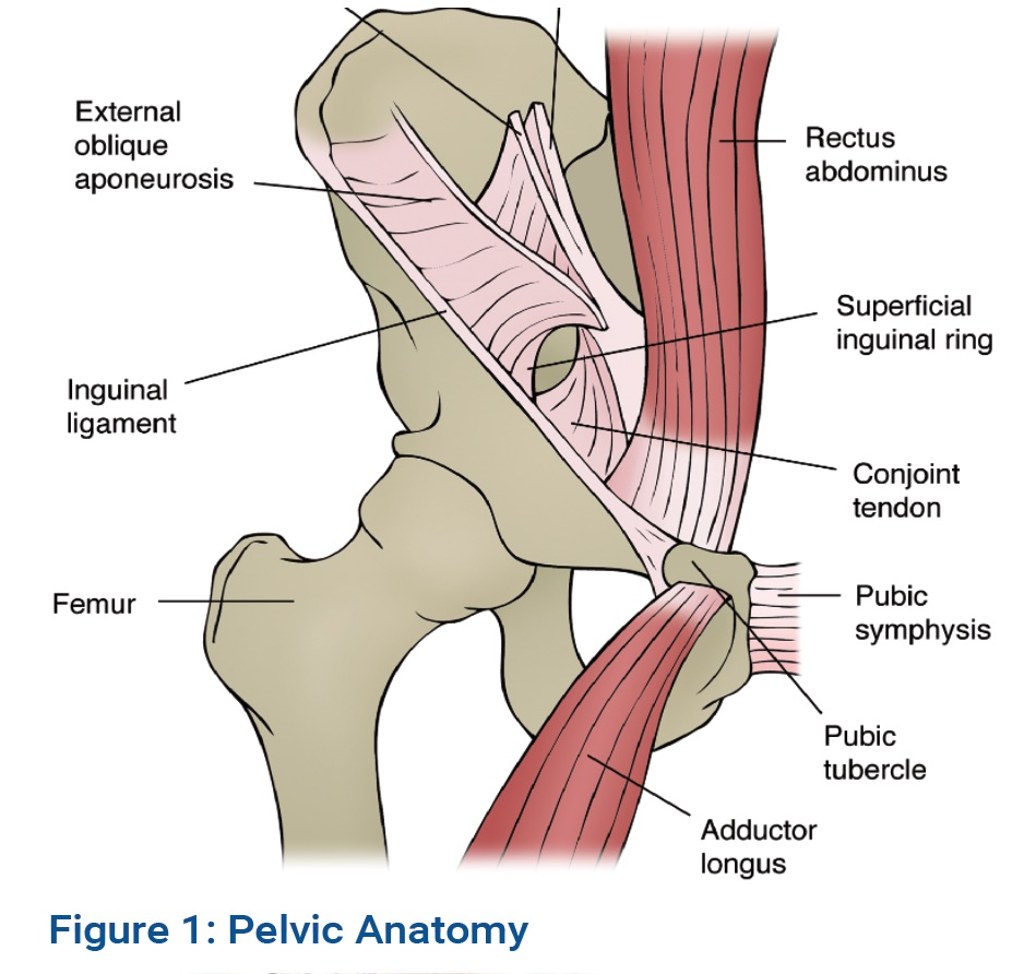 Osteitis Pubis Op A Possible Cause Of Groin Pain In Touch